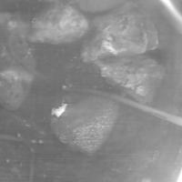 Камни в фильтровой колонне